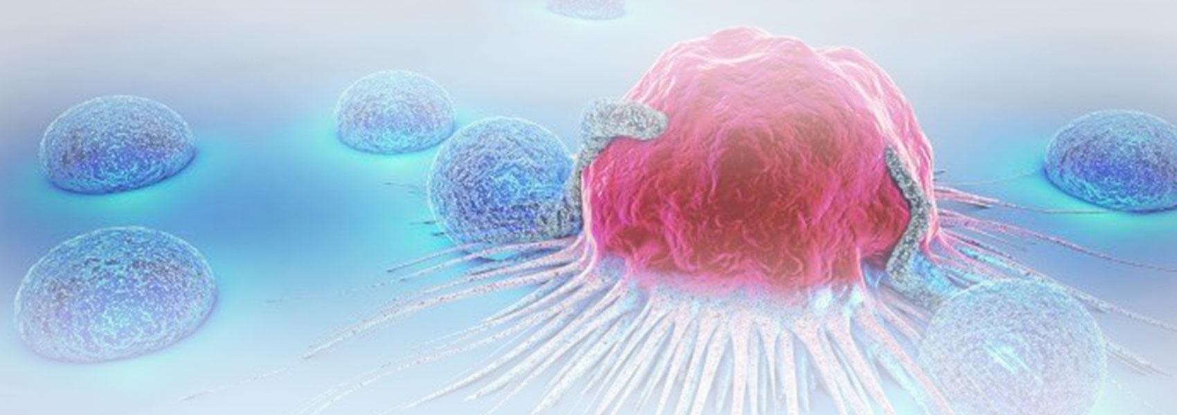 Cancer-Diagnosis-Malpractice-main